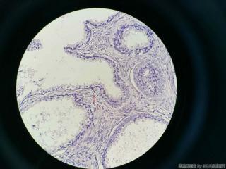 前列腺电切标本图7