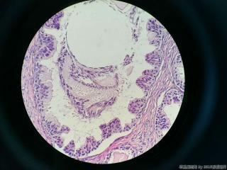 前列腺电切标本图5