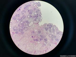 前列腺电切标本图14