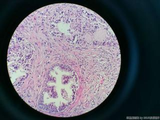 前列腺电切标本图9
