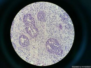 前列腺电切标本图10