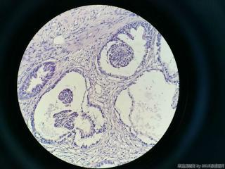 前列腺电切标本图1
