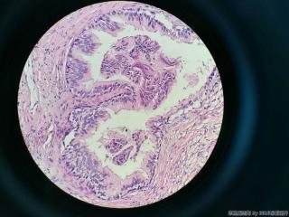 前列腺电切标本图6