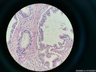 前列腺电切标本图22