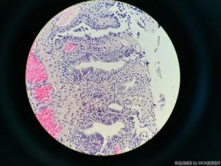前列腺电切标本图16