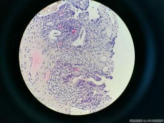 前列腺电切标本图12