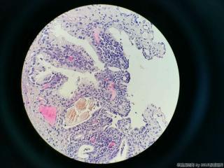 前列腺电切标本图17