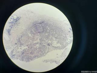 胆囊,体部浆膜面见一灶状区域,图1-5,求解!图5