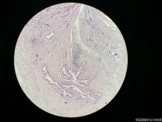 胆囊,体部浆膜面见一灶状区域,图1-5,求解!图11