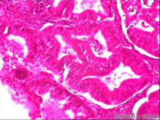 子宫内膜复杂性增生还是不典型增生?图19