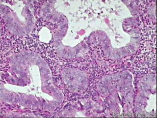 请教老师,这个报告是发不典型增生伴局灶癌变?还是直接发高分化癌?图29