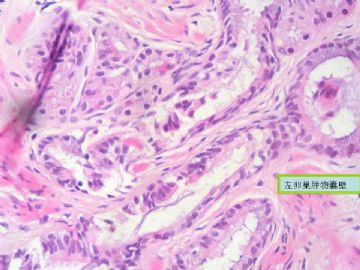 复杂的左卵巢肿物及右侧卵巢病变 免疫组化结果公布 新传大网膜图片图片